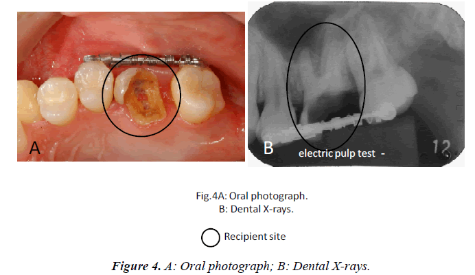 biomedres-Oral-photograph-Dental