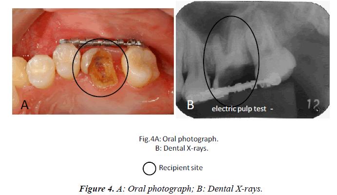 biomedres-Oral-photograph-Dental