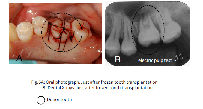biomedres-Oral-photograph-transplantation