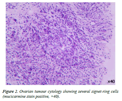 biomedres-Ovarian-tumour