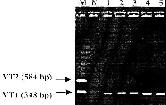 biomedres-PCR-results-obtained-EPEC-isolates