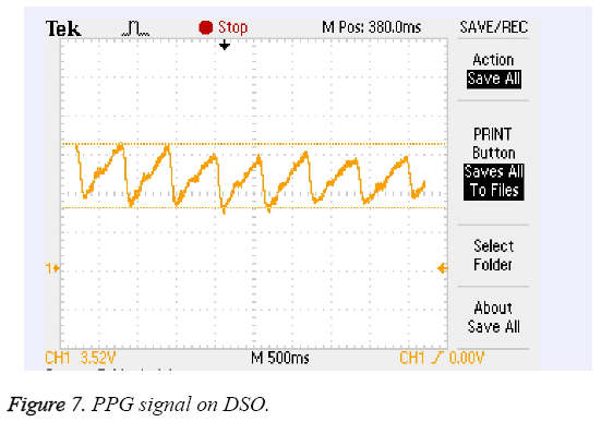 biomedres-PPG-signal-DSO