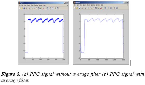 biomedres-PPG-signal-average-filter