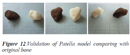 biomedres-Patella-model-comparing