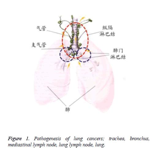 biomedres-Pathogenesis-lung