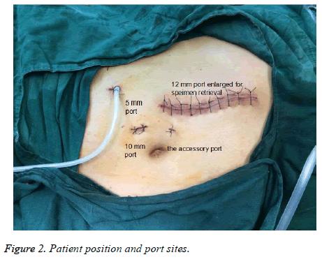 biomedres-Patient-position