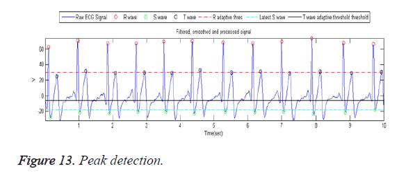 biomedres-Peak-detection