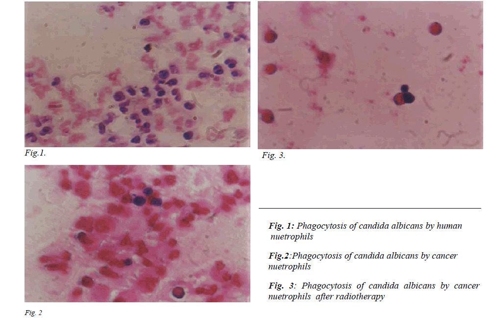 biomedres-Phagocytosis-candida-albicans