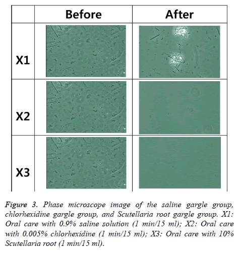 biomedres-Phase-microscope