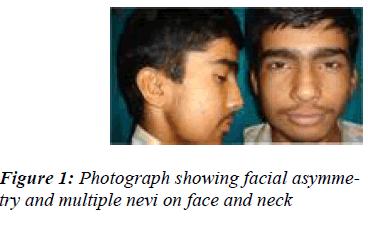 biomedres-Photograph-showing-facial-asymmetry