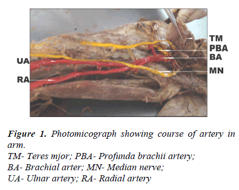 biomedres-Photomicograph-course-artery