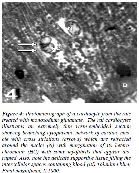 biomedres-Photomicrograph-cardiocyte-cytoplasmic