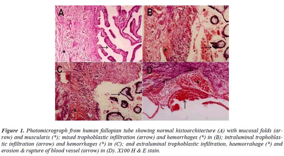 biomedres-Photomicrograph-human-fallopian