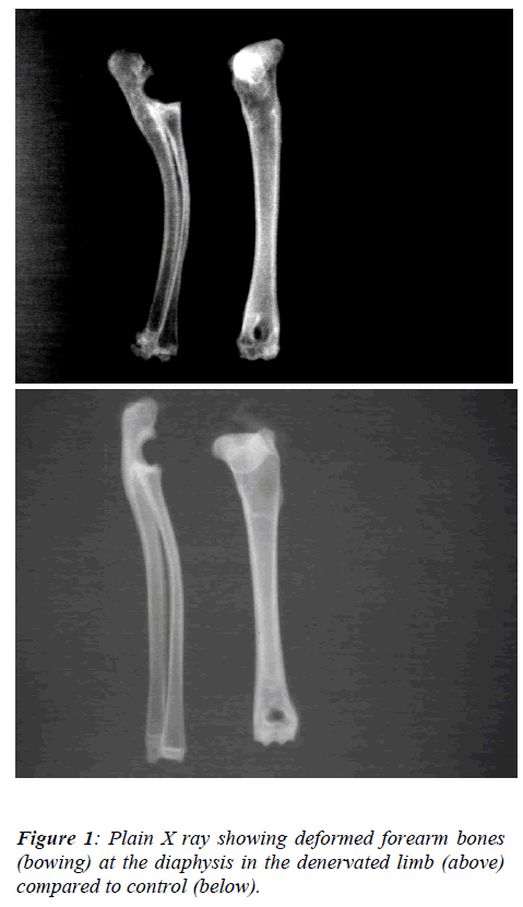 biomedres-Plain-X-ray-showing-deformed
