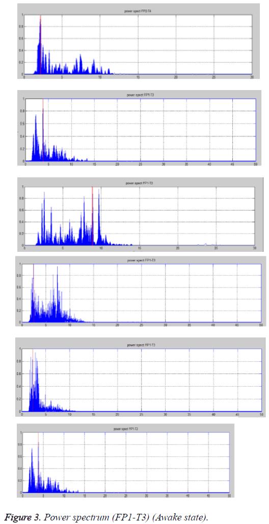 biomedres-Power-spectrum