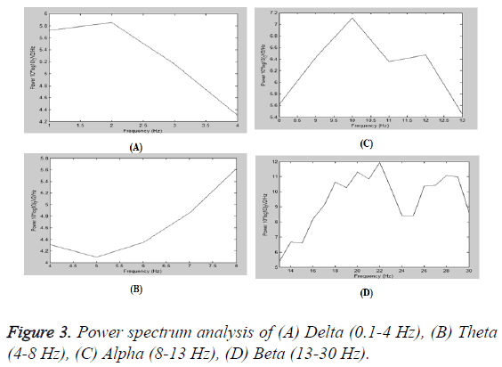 biomedres-Power-spectrum-analysis