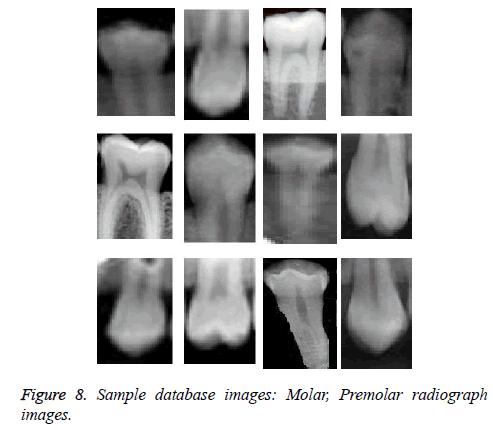 biomedres-Premolar-radiograph