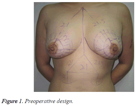 biomedres-Preoperative-design