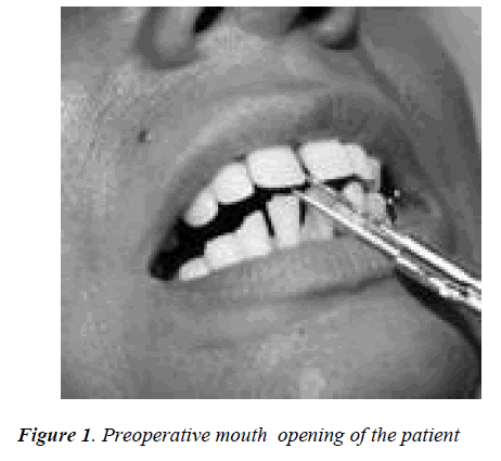 biomedres-Preoperative-mouth-opening-patient