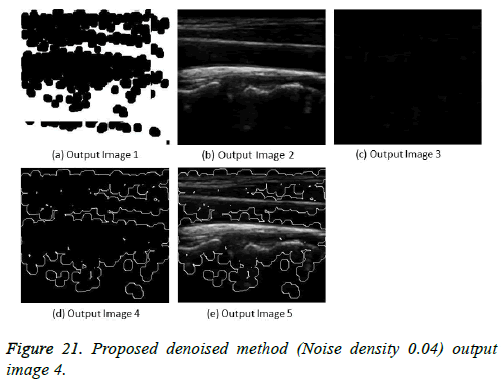 biomedres-Proposed-denoised