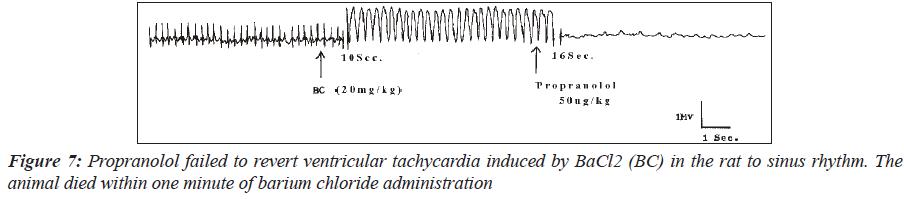 biomedres-Propranolol-failed-revert-ventricular-tachycardia