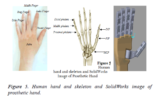 biomedres-Prosthetic-hand