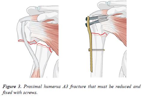 biomedres-Proximal-humerus