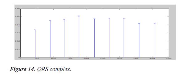 biomedres-QRS-complex