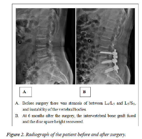 biomedres-Radiograph-patient