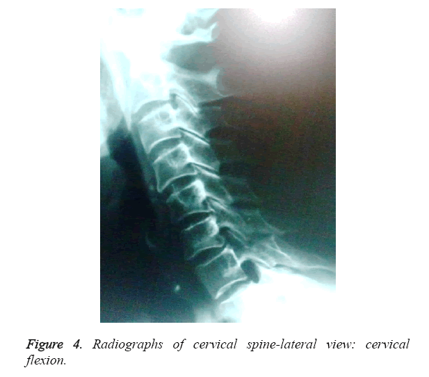 biomedres-Radiographs-cervical