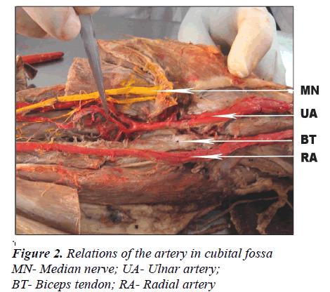 Bifurcation Of brachial artery at it?s commencement-A case report
