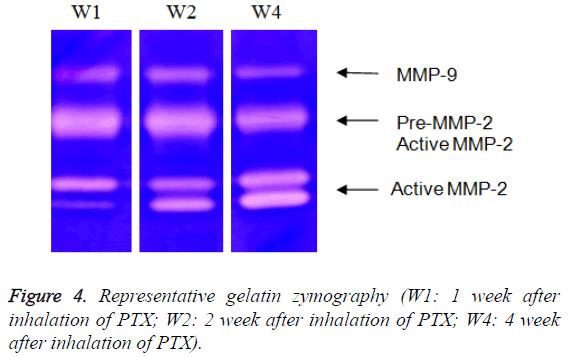 biomedres-Representative-gelatin-zymography