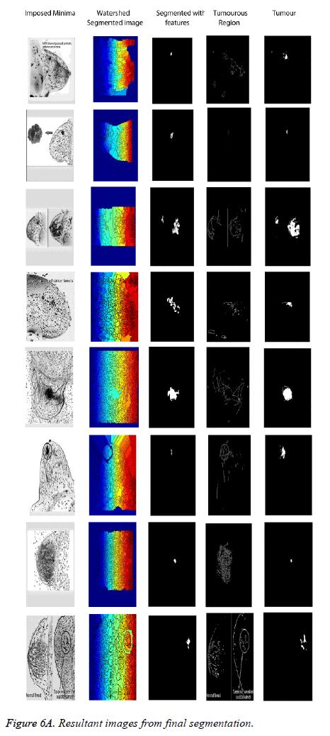 biomedres-Resultant-final-segmentation