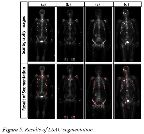 biomedres-Results-LSAC-segmentation