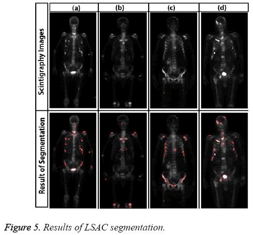 biomedres-Results-LSAC-segmentation
