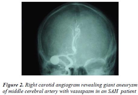 biomedres-Right-carotid-angiogram