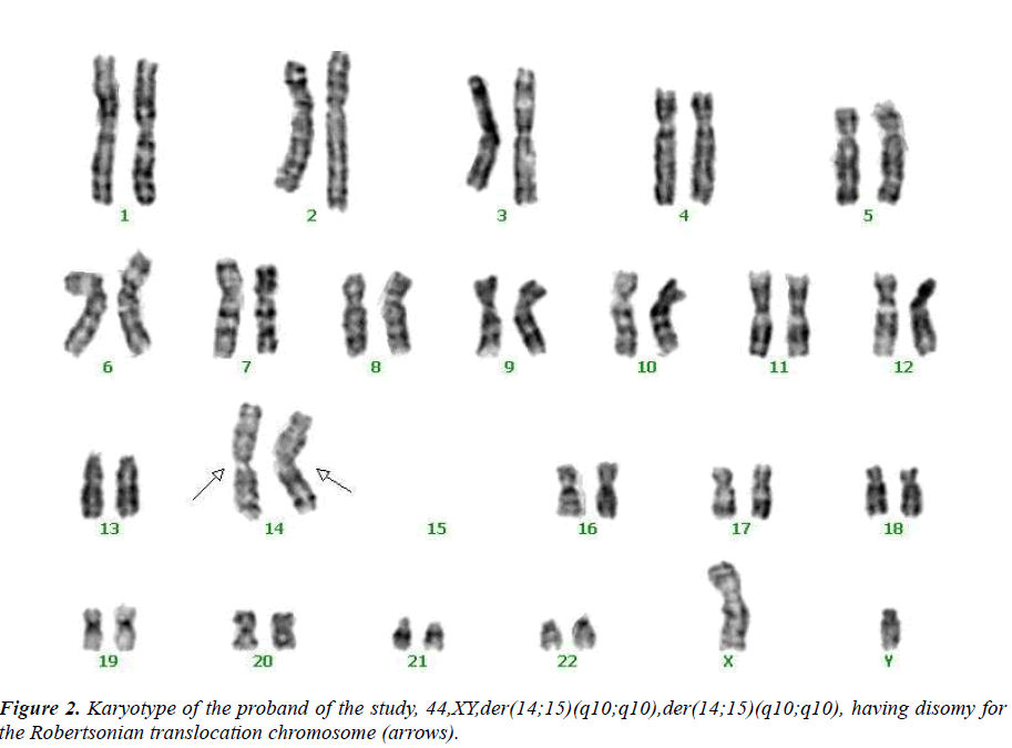 Case Report: Potential Speciation in Humans Involving ... Robertsonian Translocation Karyotype
