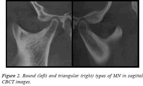biomedres-Round-sagittal