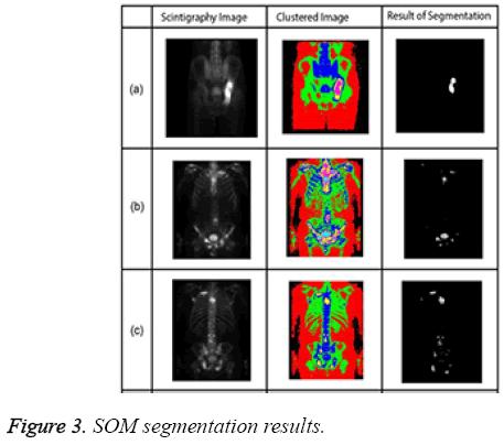 biomedres-SOM-segmentation-results