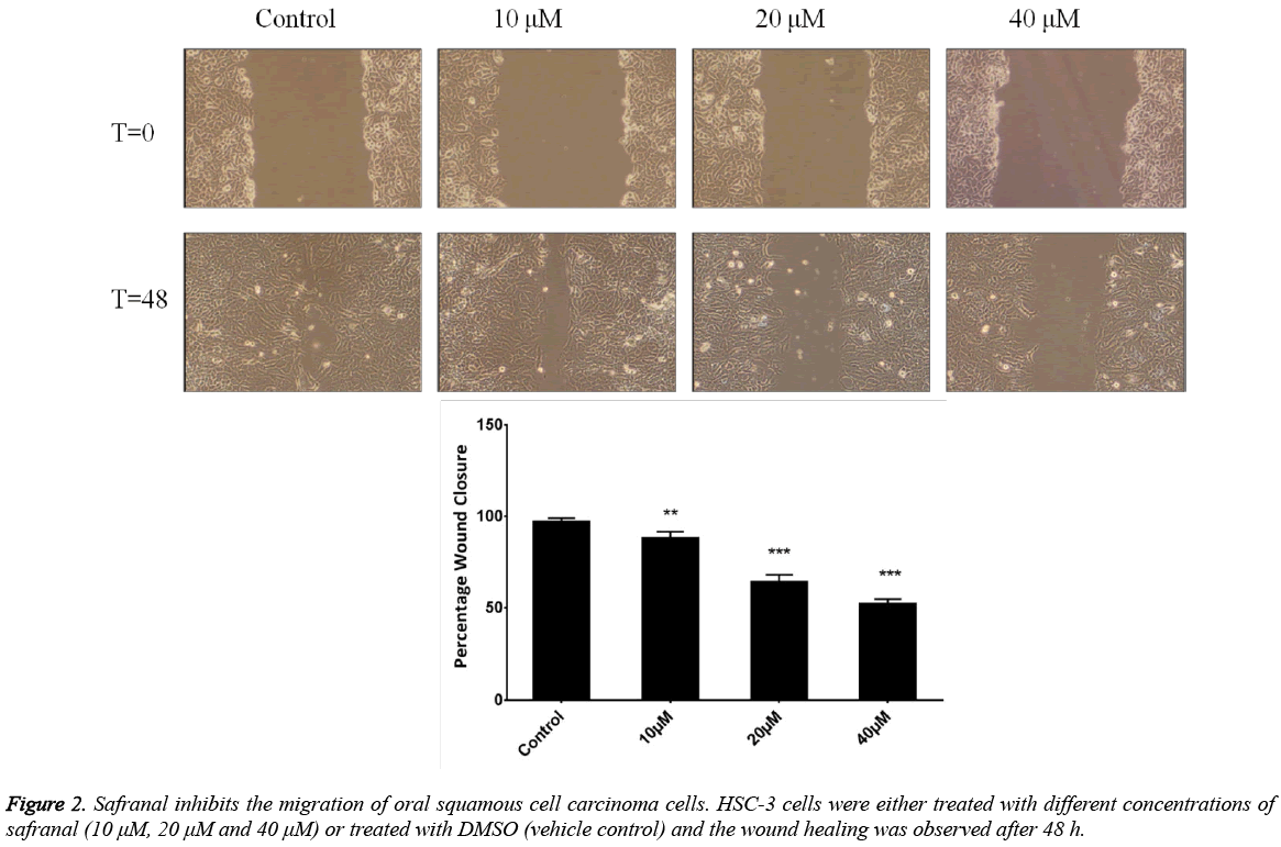 biomedres-Safranal-inhibits-migration