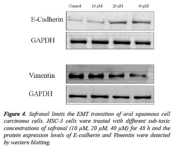 biomedres-Safranal-limits-EMT