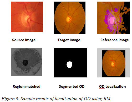 biomedres-Sample-results-localization