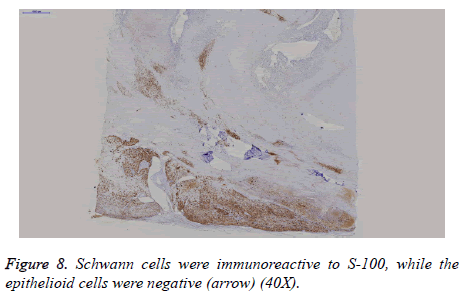 biomedres-Schwann-cells