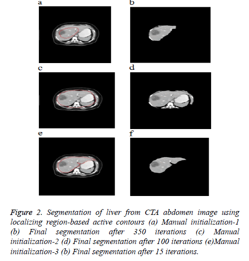 biomedres-Segmentation-liver
