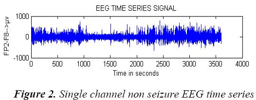 biomedres-Single-channel-seizure