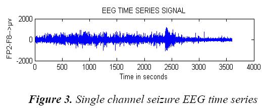 biomedres-Single-seizure-EEG-time