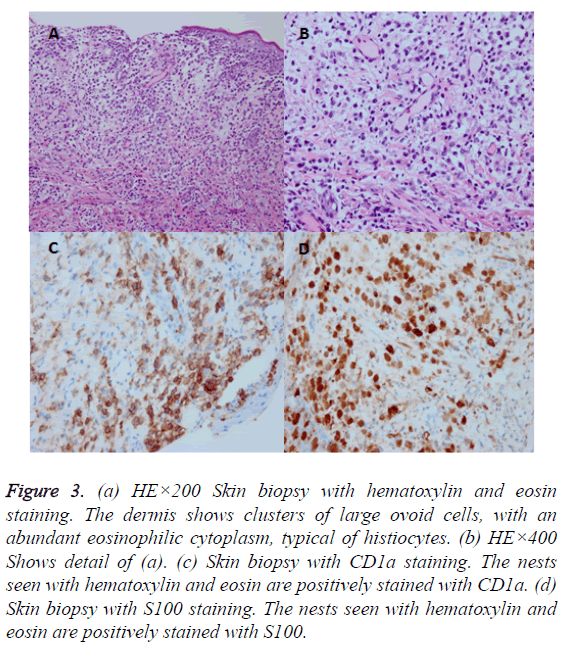 biomedres-Skin-biopsy-hematoxylin