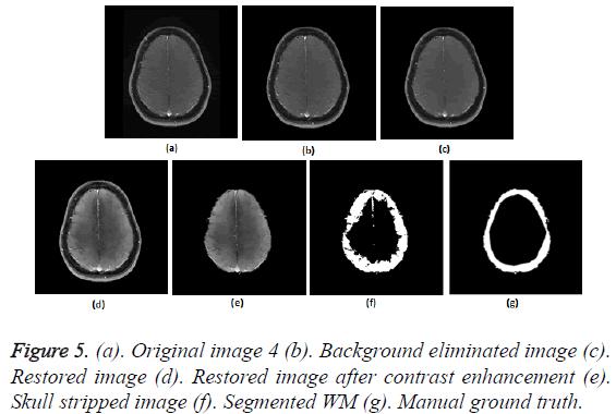 biomedres-Skull-stripped-image