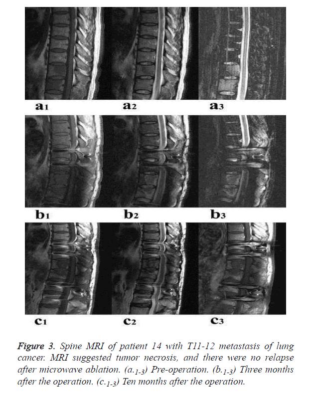 biomedres-Spine-MRI