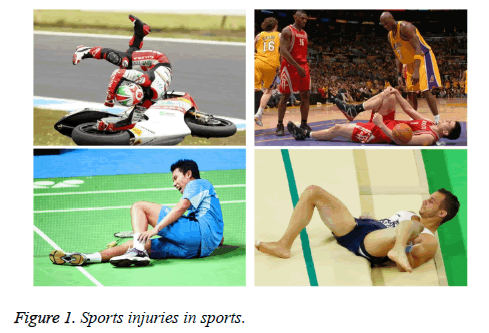 biomedres-Sports-injuries